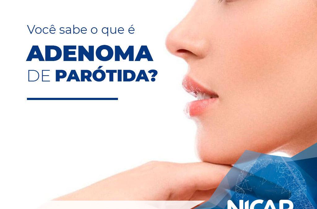 Você sabe o que é Adenoma de Parótida?