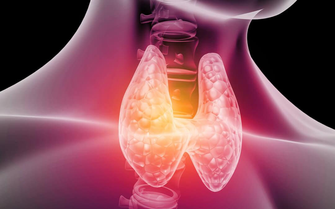Nódulo de tireoide: como conduzir o diagnóstico correto?